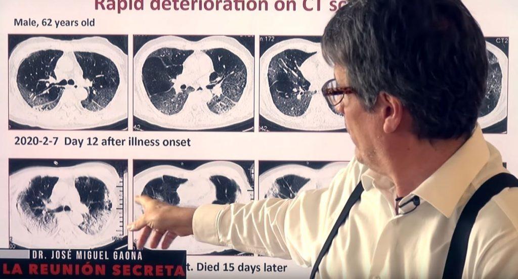 Las secuelas del Coronavirus